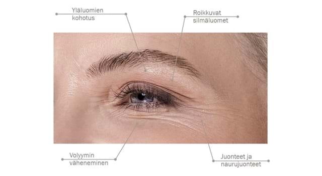 Fillerina 932 Eyes Eyelids Käyttö