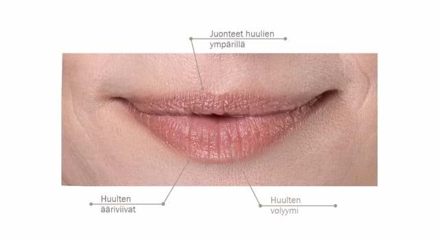 Fillerina 932 Lips Mouth Käyttö